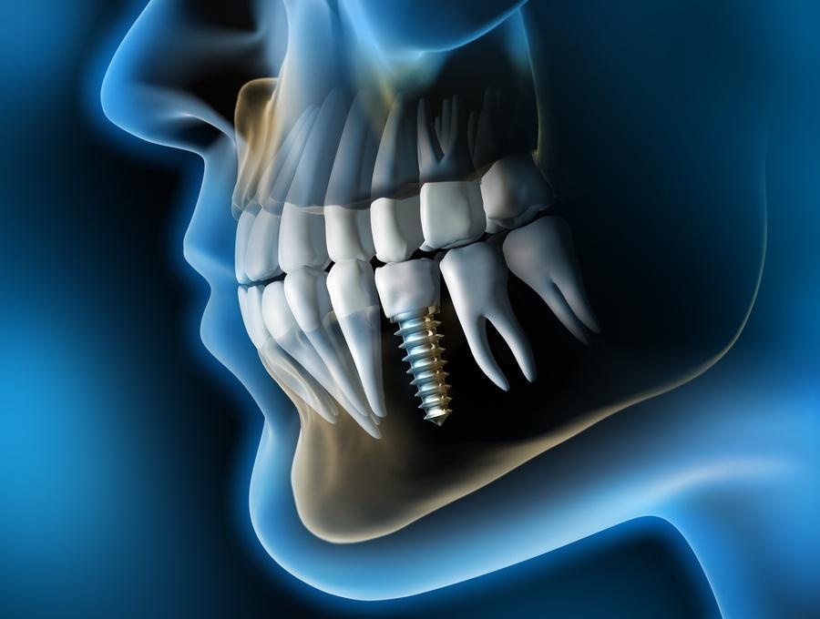 Cuanto valen los implantes dentales