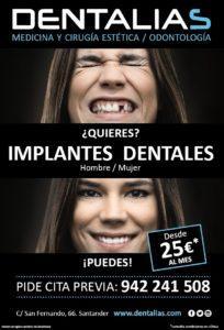 Vuelve a presumir de sonrisa con los implantes dentales Alta Gama de titanio que te ofrece Dentalias