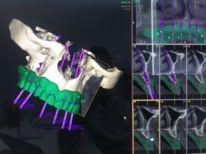 Bienvenido al futuro con Dentalias, llega la última tecnología en regeneración ósea