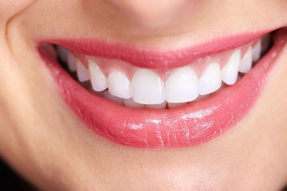 odontologia dentista diseño de sonrisa ortodoncia invisible dentix vitaldent dentalia dentista barato