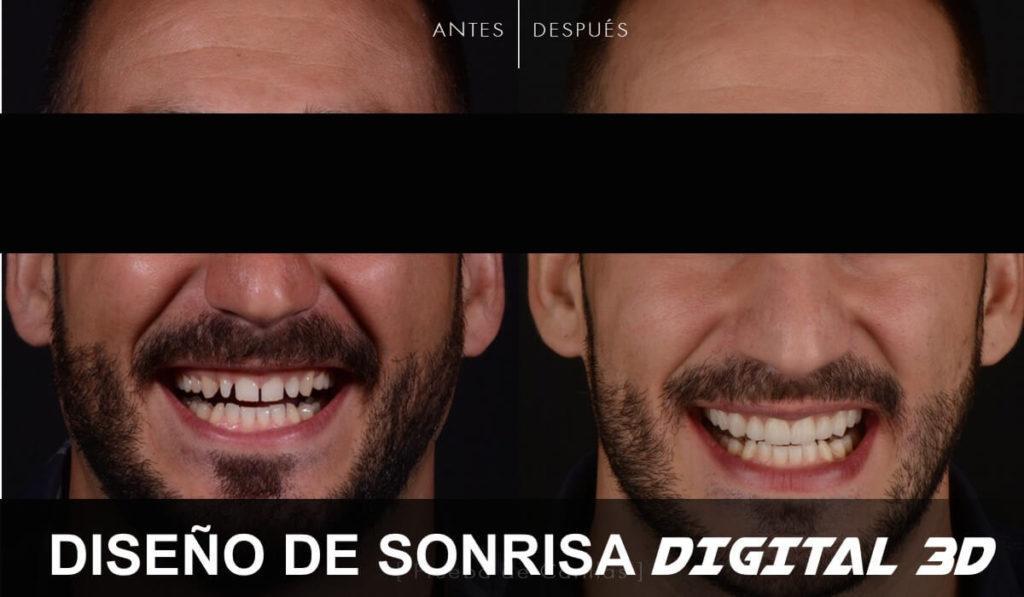 diseño sonrisa españa mejor precio cuanto cuesta y en que consiste el diseño de sonrisa