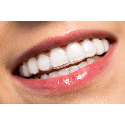 ortodoncia invisible en santander ortodoncia estética en santander cantabria mejor precio con invisalign torrelavega bilbao