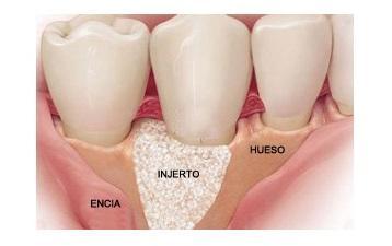 Injertos óseos dentales