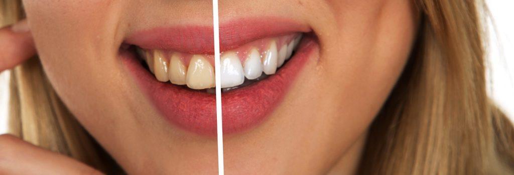 limpieza dental en santander, limpieza dental en cantabria, limpieza dental en torrelavega