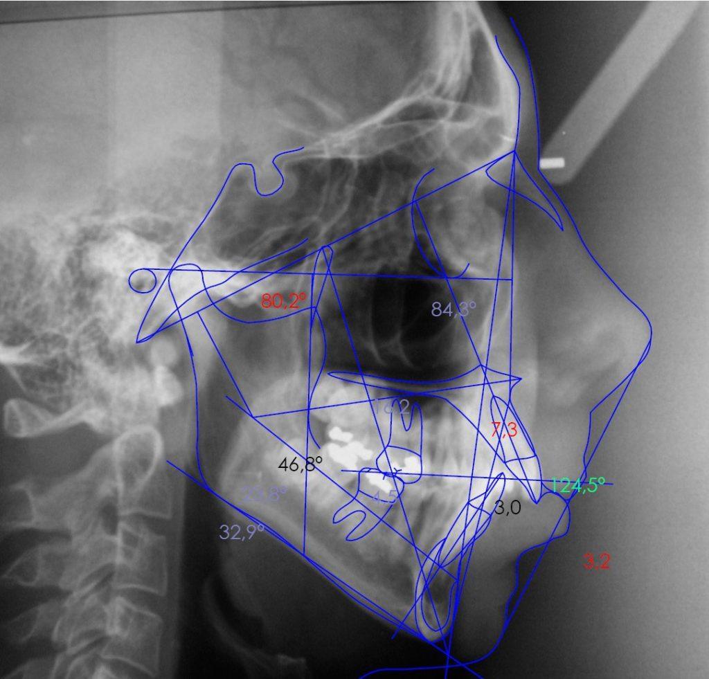 Cefalometría digital