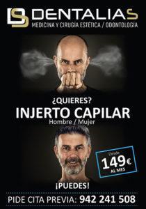 CON DENTALIAS, TU INJERTO CAPILAR, SIN SALIR DE CANTABRIA