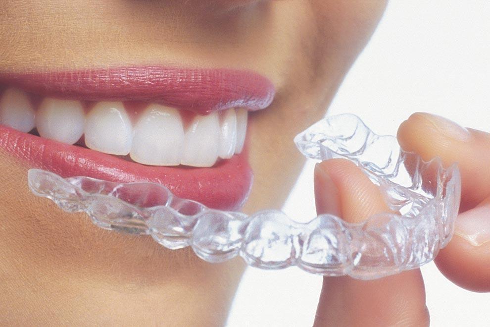 """Beneficios y ventajas de la """"Ortodoncia Invisible"""" Invisalign®"""