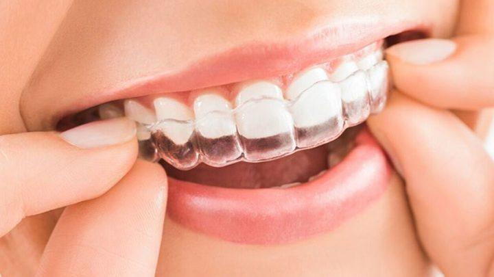 Los 3 tipos de Invisalign. Clínicas Dentalias en Cantabria