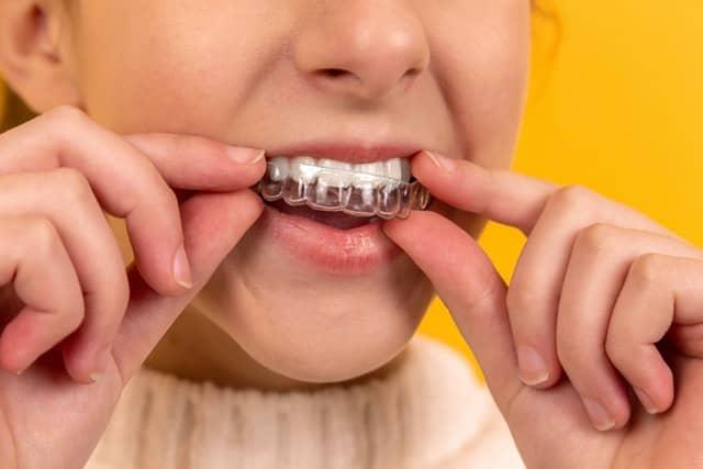 Ortodoncia invisible en Santander: Invisalign Santander, ortodoncias en Cantabria para niños y adultos
